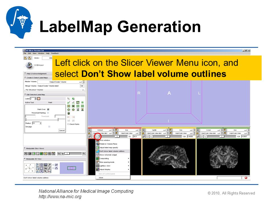 National Alliance for Medical Image Computing http://www.na-mic.org LabelMap Generation Left click on the Slicer Viewer Menu icon, and select Dont Sho