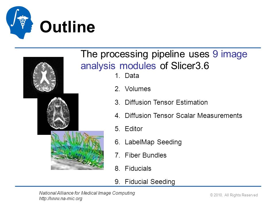 National Alliance for Medical Image Computing http://www.na-mic.org © 2010, All Rights Reserved Outline The processing pipeline uses 9 image analysis
