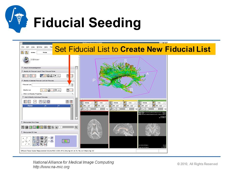 National Alliance for Medical Image Computing http://www.na-mic.org Fiducial Seeding Set Fiducial List to Create New Fiducial List © 2010, All Rights