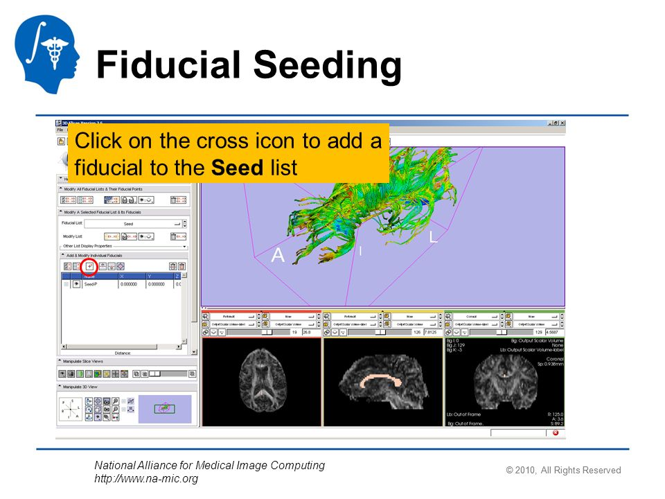 National Alliance for Medical Image Computing http://www.na-mic.org Fiducial Seeding Click on the cross icon to add a fiducial to the Seed list © 2010