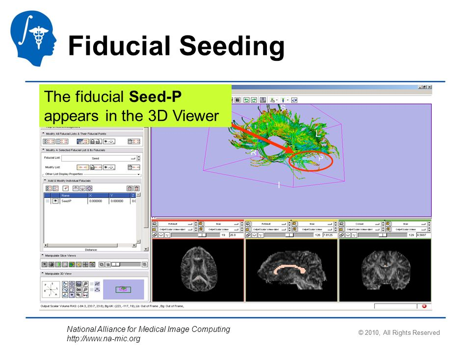 National Alliance for Medical Image Computing http://www.na-mic.org Fiducial Seeding The fiducial Seed-P appears in the 3D Viewer © 2010, All Rights R
