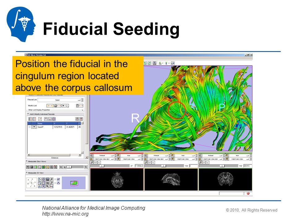 National Alliance for Medical Image Computing http://www.na-mic.org Fiducial Seeding Position the fiducial in the cingulum region located above the co