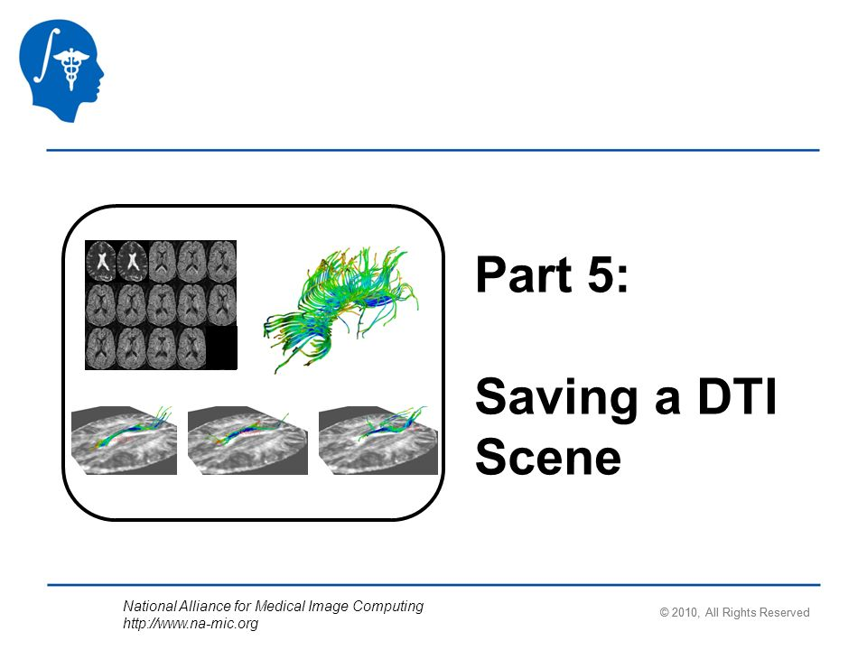 National Alliance for Medical Image Computing http://www.na-mic.org Part 5: Saving a DTI Scene © 2010, All Rights Reserved