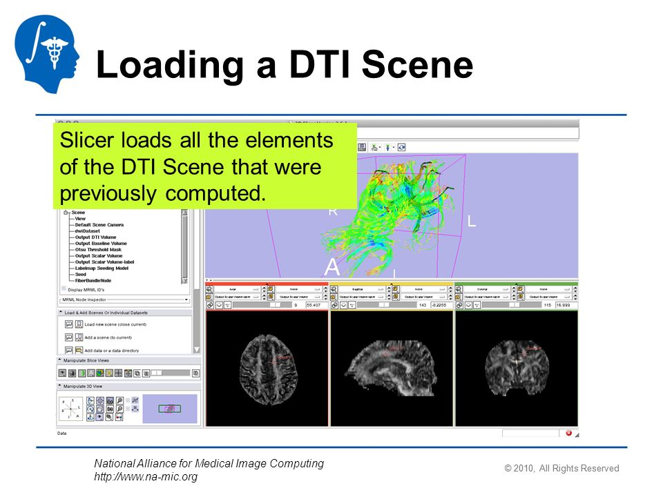 National Alliance for Medical Image Computing http://www.na-mic.org Loading a DTI Scene Slicer loads all the elements of the DTI Scene that were previ