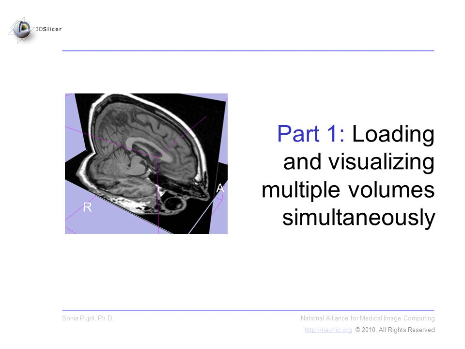 Part 1: Loading and visualizing multiple volumes simultaneously National Alliance for Medical Image Computing http://na-mic.orghttp://na-mic.org © 2010, All Rights Reserved Sonia Pujol, Ph.D.