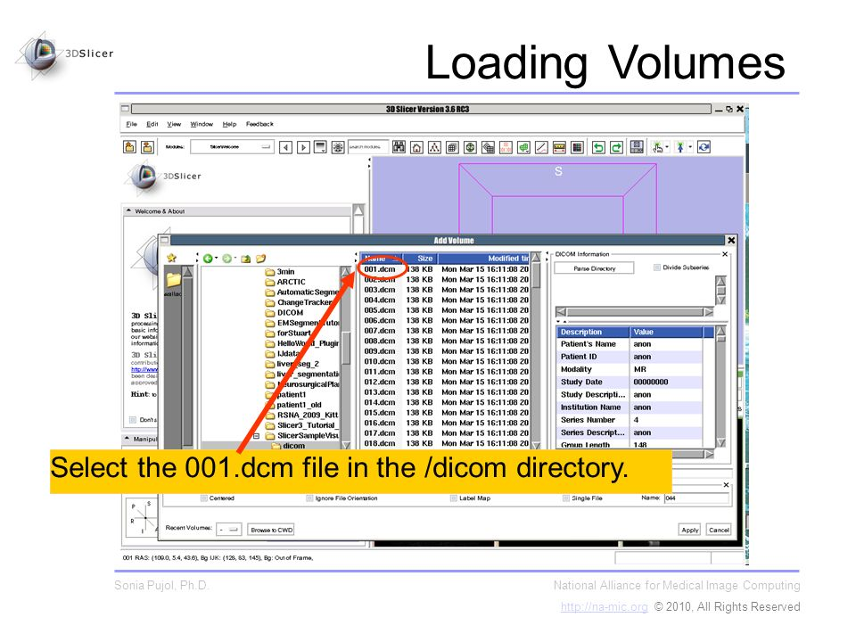Select the 001.dcm file in the /dicom directory.
