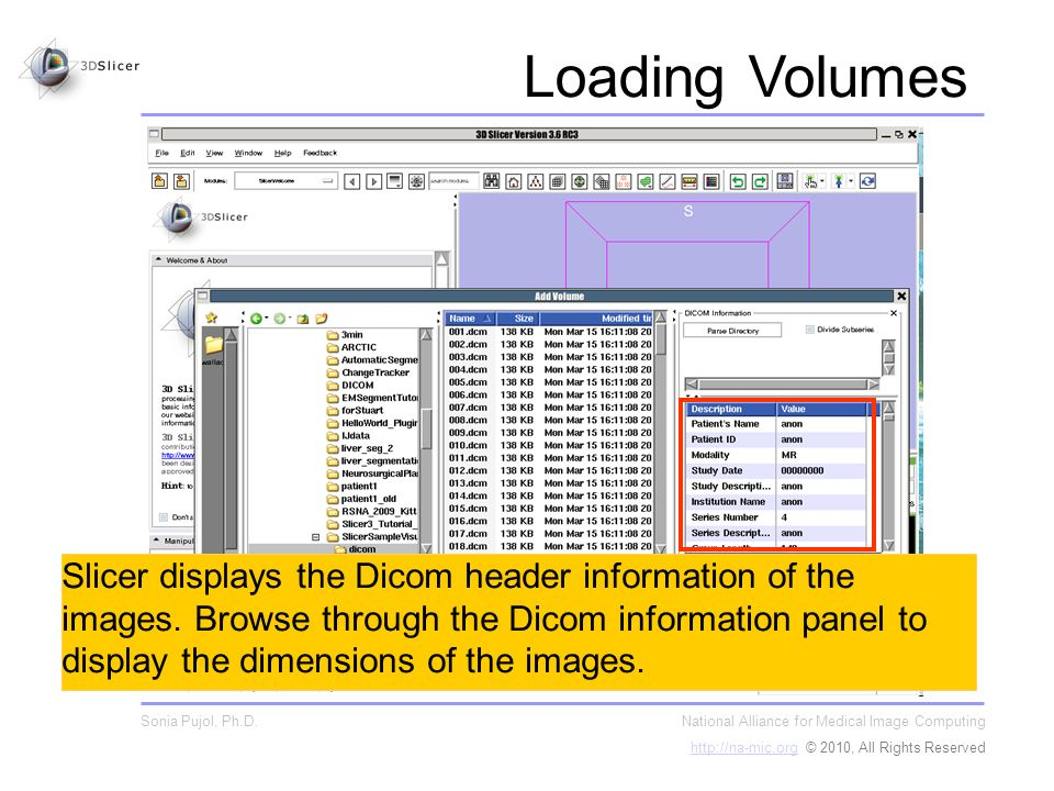 Slicer displays the Dicom header information of the images.