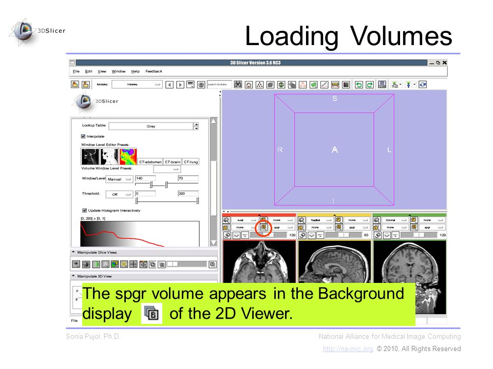 The spgr volume appears in the Background display of the 2D Viewer.