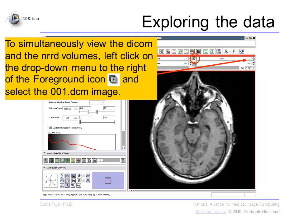 To simultaneously view the dicom and the nrrd volumes, left click on the drop-down menu to the right of the Foreground icon and select the 001.dcm image.