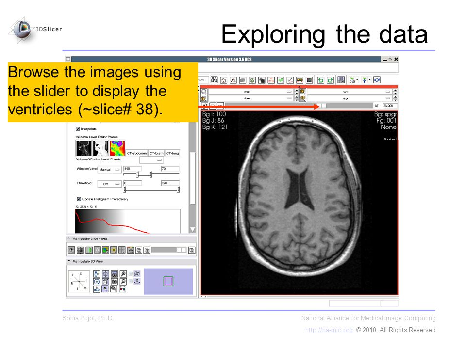Browse the images using the slider to display the ventricles (~slice# 38).
