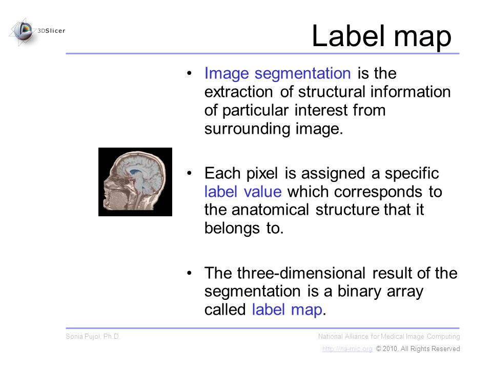 Label map Image segmentation is the extraction of structural information of particular interest from surrounding image.