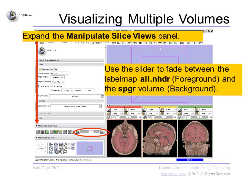 Expand the Manipulate Slice Views panel.