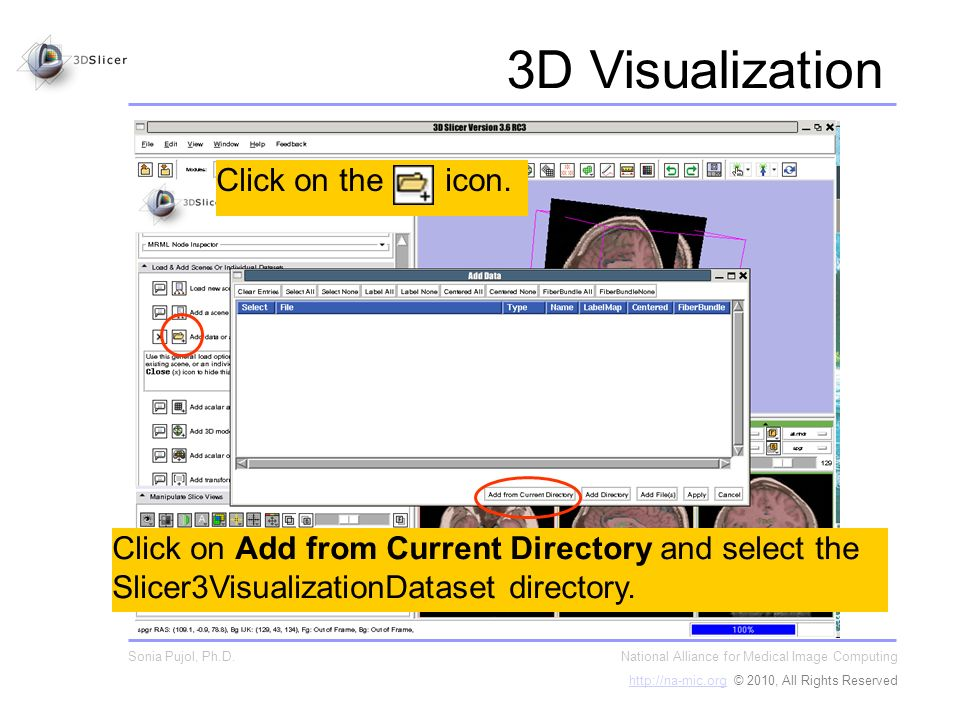 Click on Add from Current Directory and select the Slicer3VisualizationDataset directory.