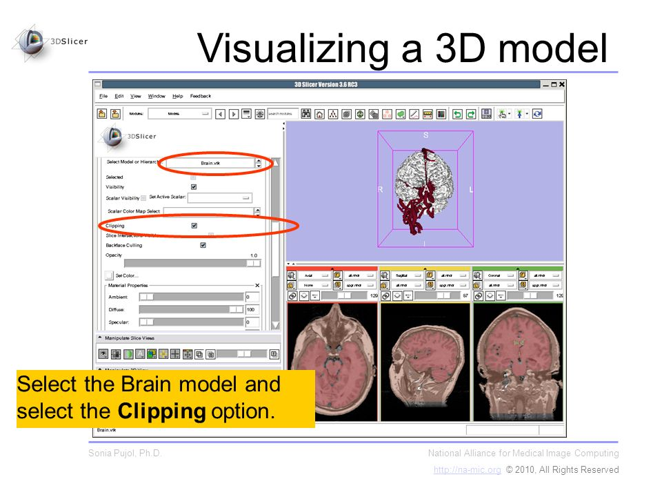 Select the Brain model and select the Clipping option.