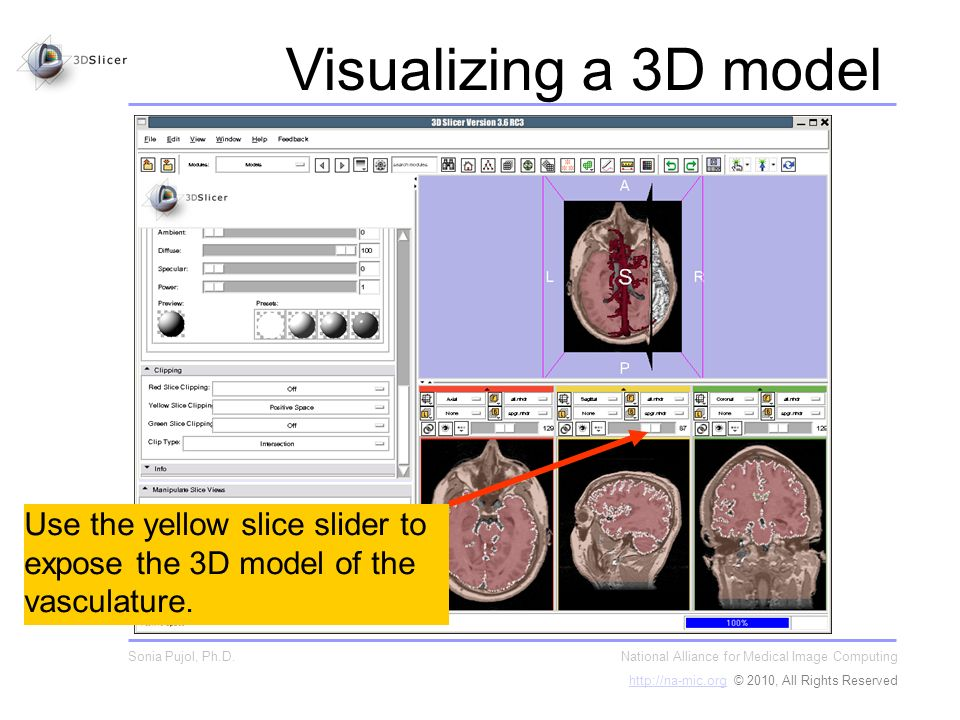 Use the yellow slice slider to expose the 3D model of the vasculature.