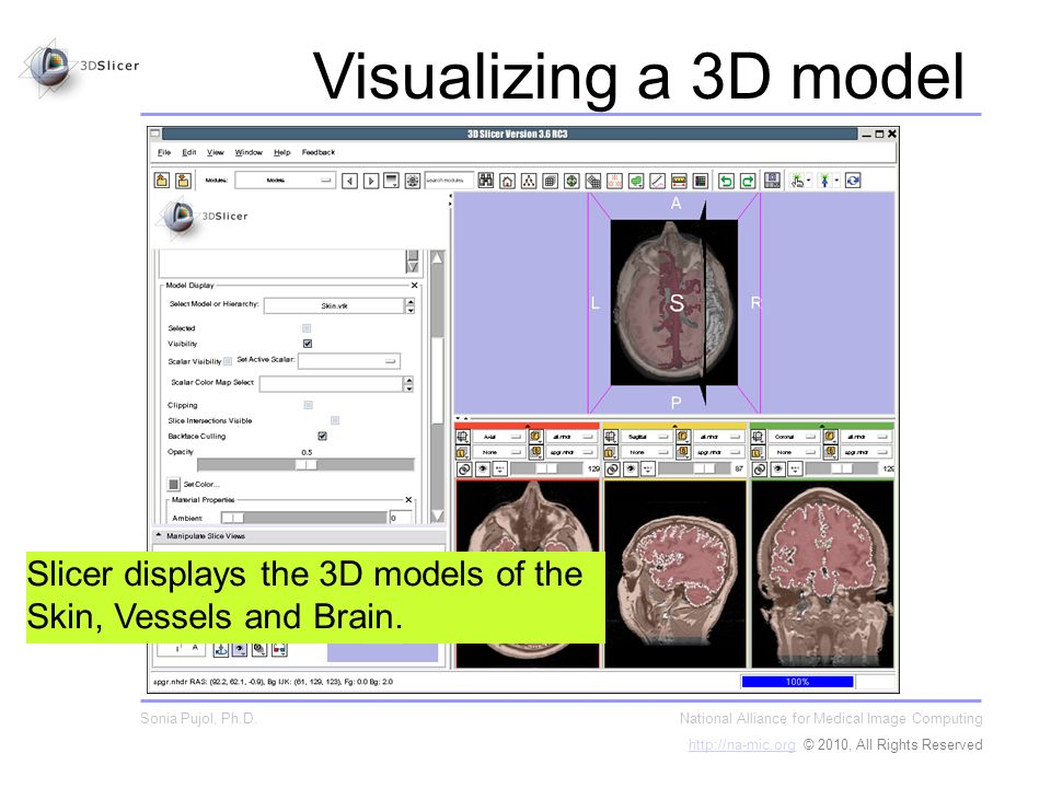 Slicer displays the 3D models of the Skin, Vessels and Brain.