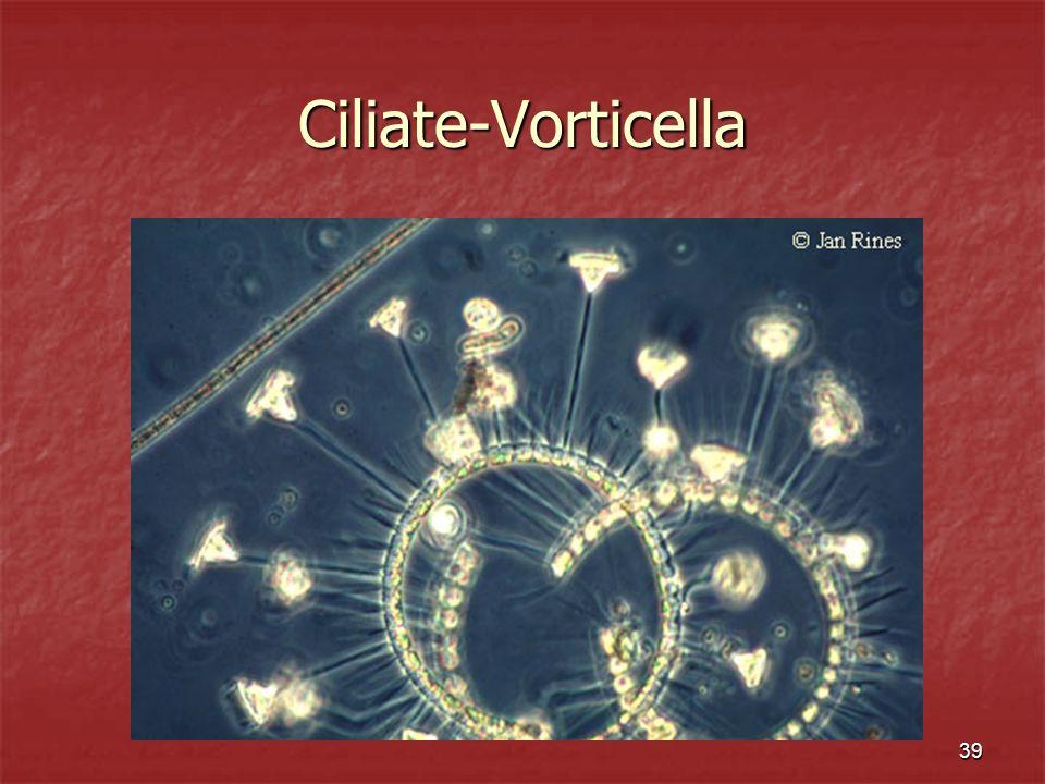39 Ciliate-Vorticella