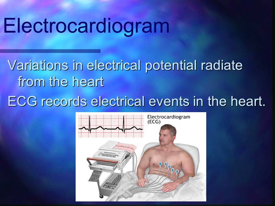 Variations in electrical potential radiate from the heart ECG records electrical events in the heart. Electrocardiogram