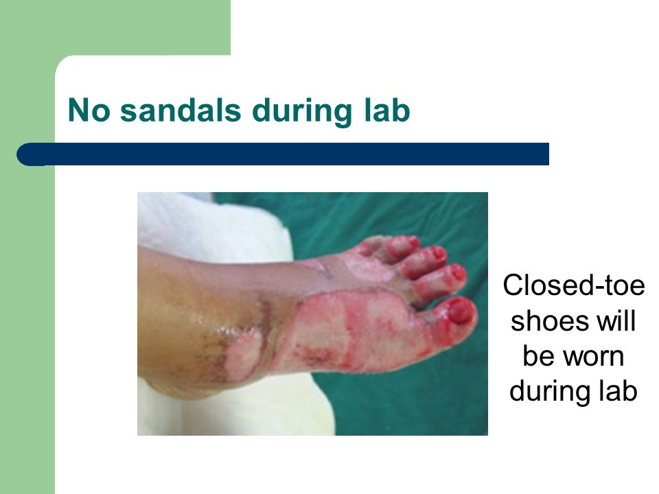 No sandals during lab Closed-toe shoes will be worn during lab