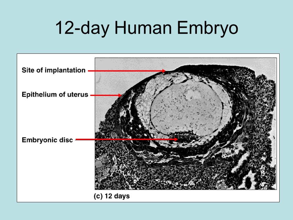 12-day Human Embryo