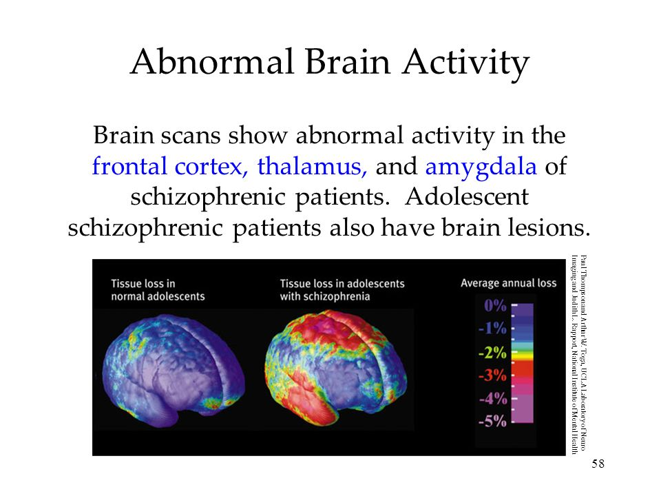 58 Abnormal Brain Activity Brain scans show abnormal activity in the frontal cortex, thalamus, and amygdala of schizophrenic patients. Adolescent schi