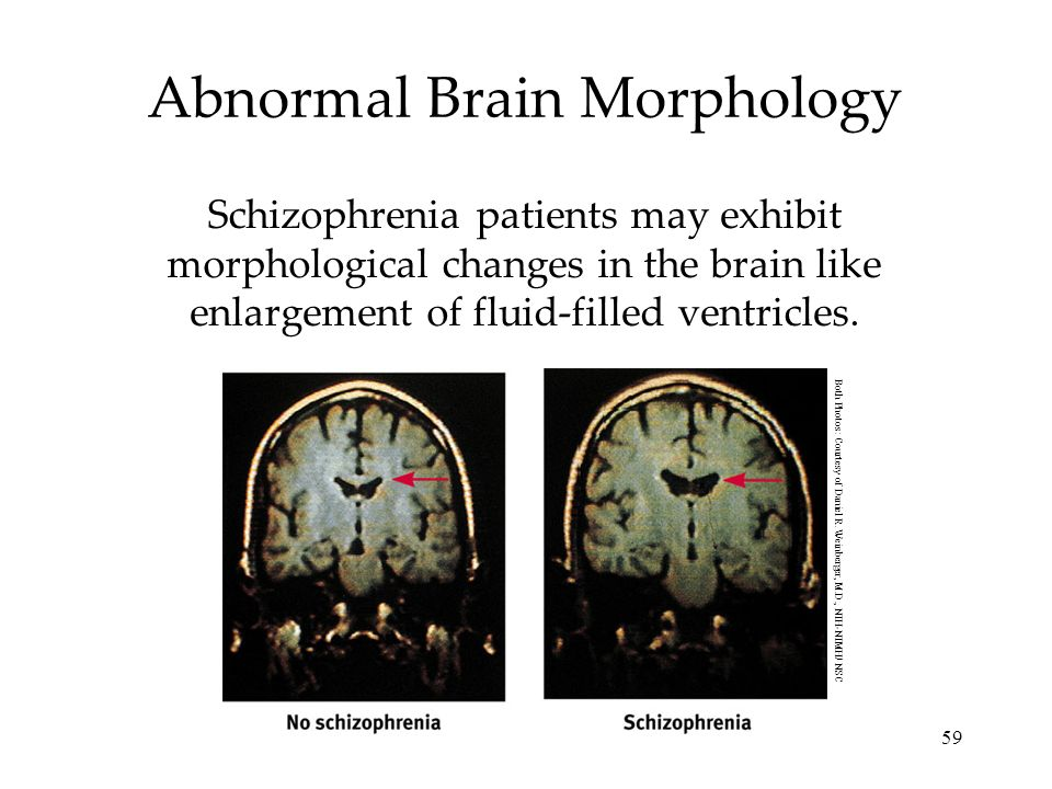 59 Abnormal Brain Morphology Schizophrenia patients may exhibit morphological changes in the brain like enlargement of fluid-filled ventricles. Both P