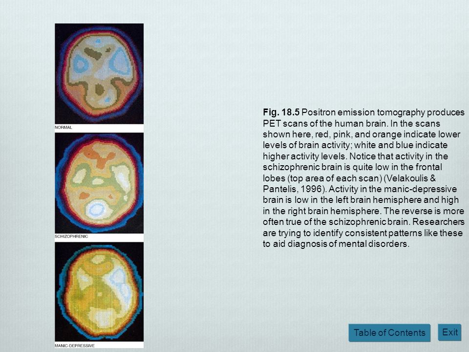 Table of Contents Exit Fig. 18.5 Positron emission tomography produces PET scans of the human brain. In the scans shown here, red, pink, and orange in