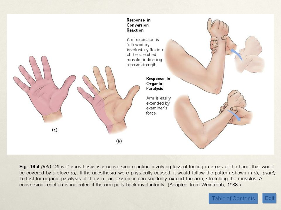 Table of Contents Exit Fig. 16.4 (left) Glove anesthesia is a conversion reaction involving loss of feeling in areas of the hand that would be covered