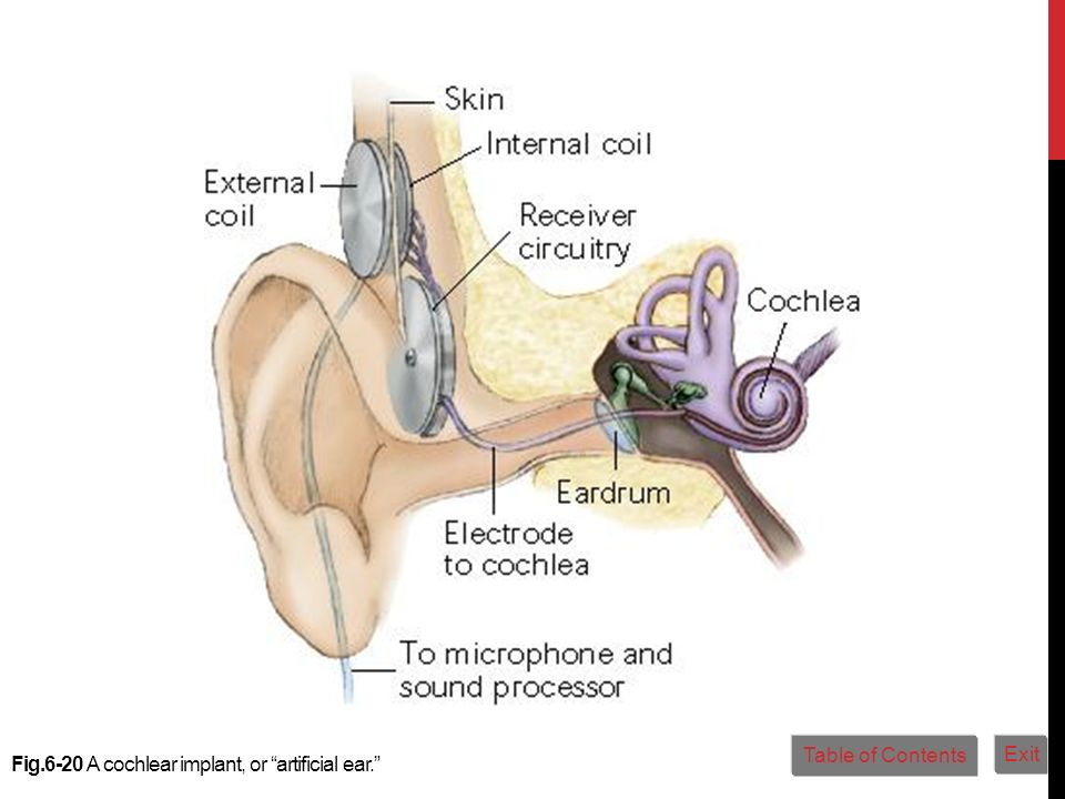 Fig.6-20 A cochlear implant, or artificial ear. Table of Contents Exit