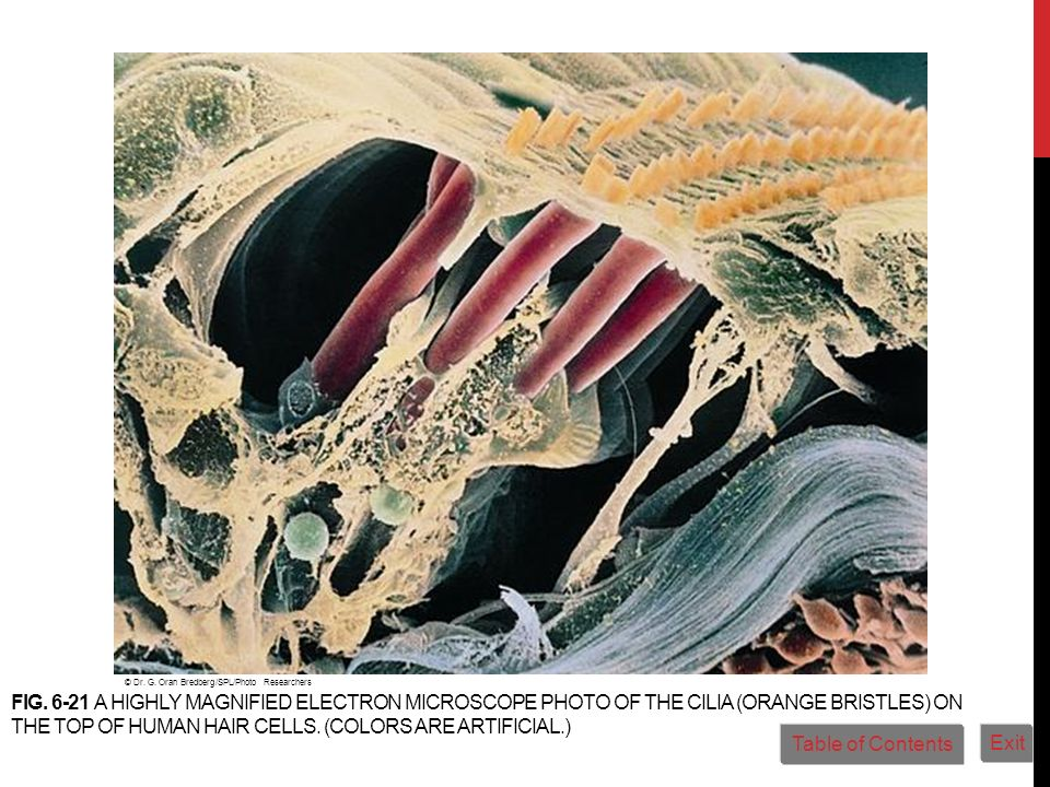 FIG. 6-21 A HIGHLY MAGNIFIED ELECTRON MICROSCOPE PHOTO OF THE CILIA (ORANGE BRISTLES) ON THE TOP OF HUMAN HAIR CELLS. (COLORS ARE ARTIFICIAL.) © Dr. G