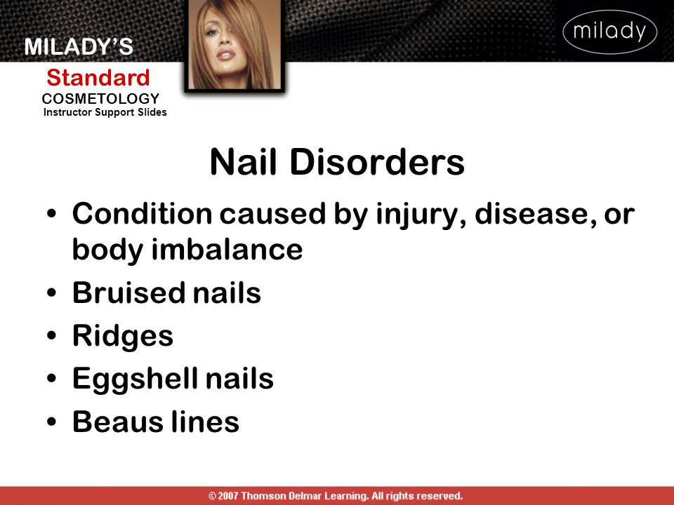 MILADYS Standard Instructor Support Slides COSMETOLOGY Condition caused by injury, disease, or body imbalance Bruised nails Ridges Eggshell nails Beau