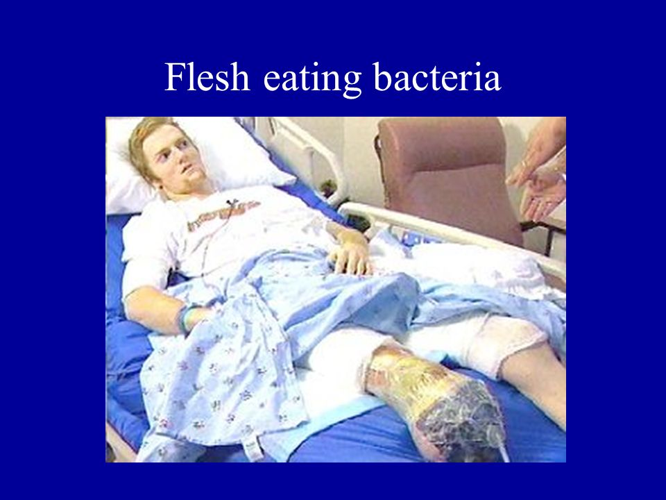 Flesh eating bacteria