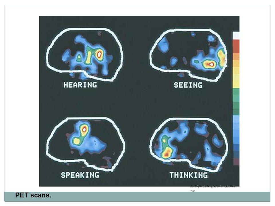 PET scans. Washington University School of Medicine, St. Louis