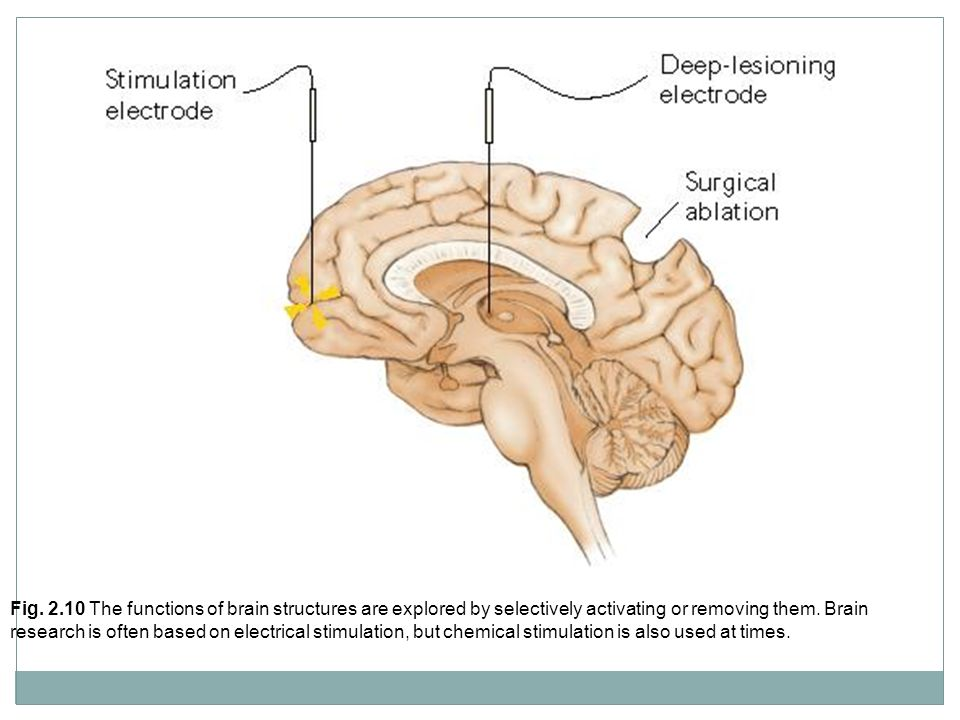 Fig. 2.10 The functions of brain structures are explored by selectively activating or removing them. Brain research is often based on electrical stimu