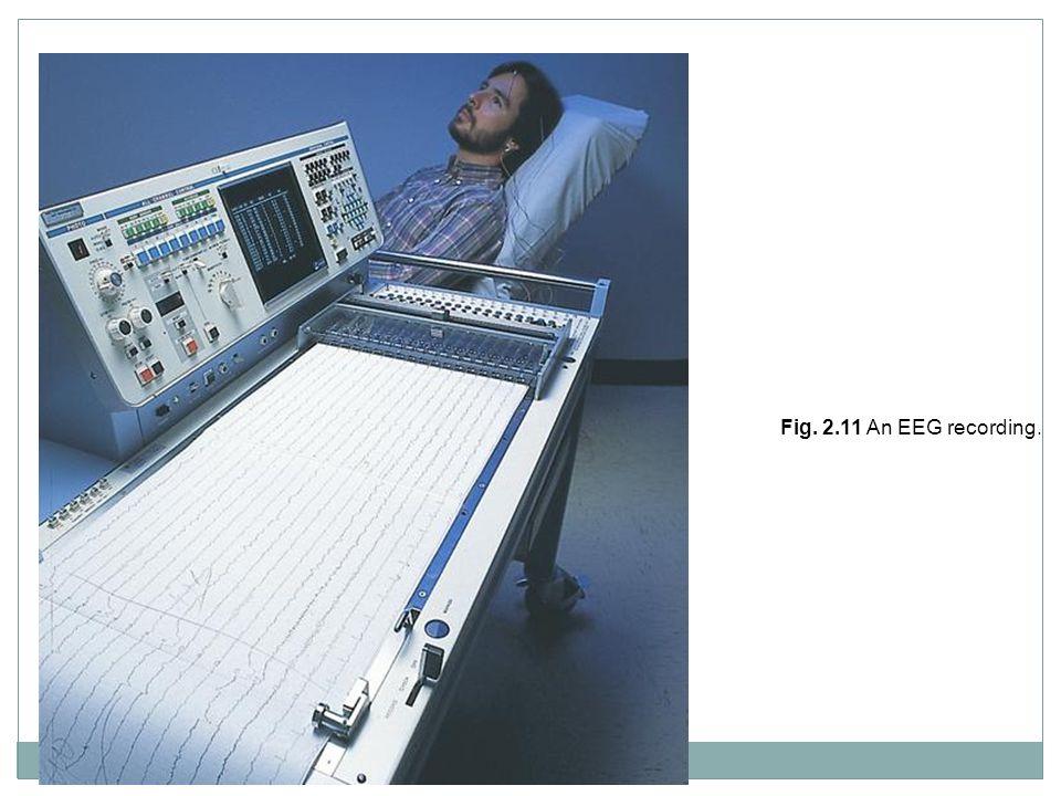 Fig. 2.11 An EEG recording.