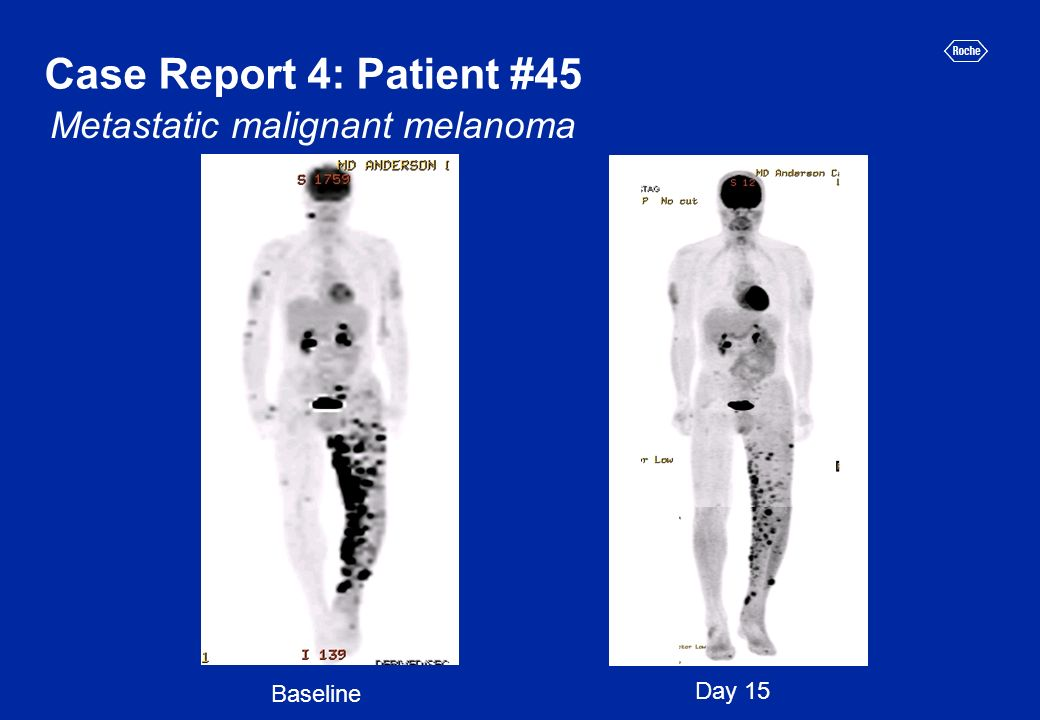 Case Report 4: Patient #45 Day 15 Baseline Metastatic malignant melanoma