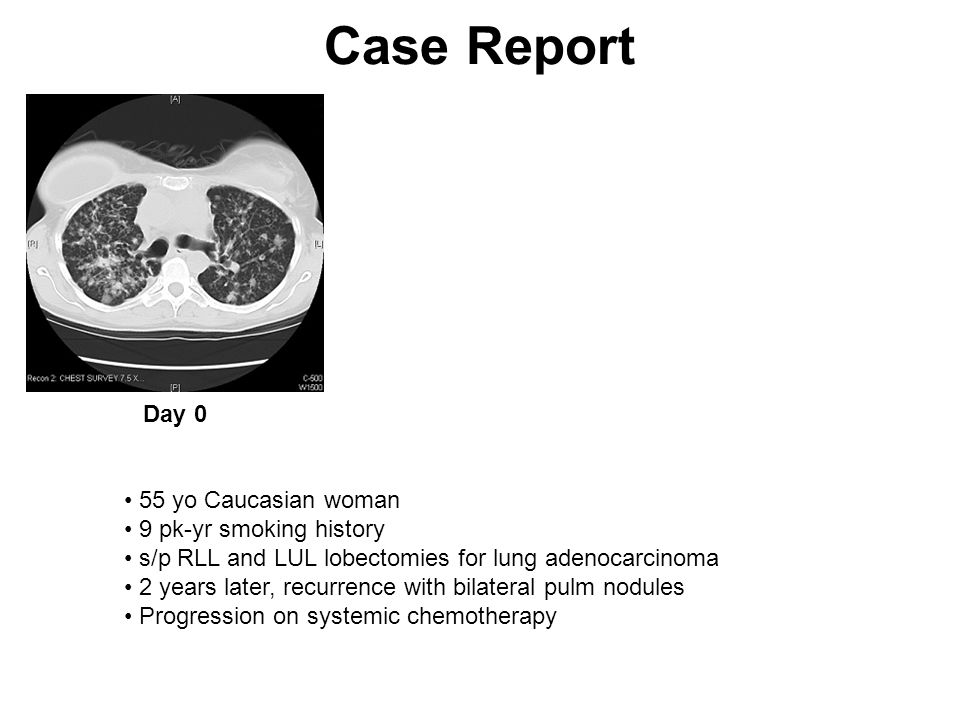 Jemal et al 09 Cancer in the United States, 2009 New CasesDeaths Lung219,440Lung159,390 Breast192,370Colorectal49,920 Prostate192,280Breast40,170 Colorectal146,970Prostate27,360