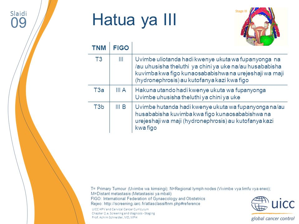 UICC HPV and Cervical Cancer Curriculum Chapter 2.e. Screening and diagnosis - Staging Prof. Achim Schneider, MD, MPH Slaidi 09 Hatua ya III TNMFIGO T
