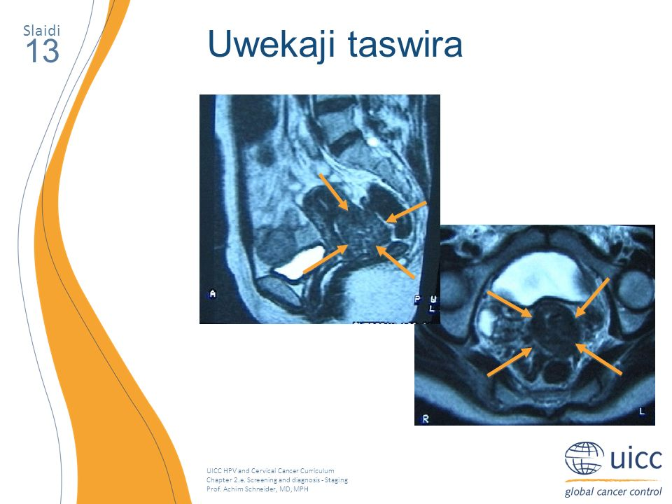 UICC HPV and Cervical Cancer Curriculum Chapter 2.e. Screening and diagnosis - Staging Prof. Achim Schneider, MD, MPH Slaidi 13 Uwekaji taswira