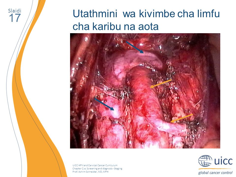 UICC HPV and Cervical Cancer Curriculum Chapter 2.e. Screening and diagnosis - Staging Prof. Achim Schneider, MD, MPH Slaidi 17 Utathmini wa kivimbe c