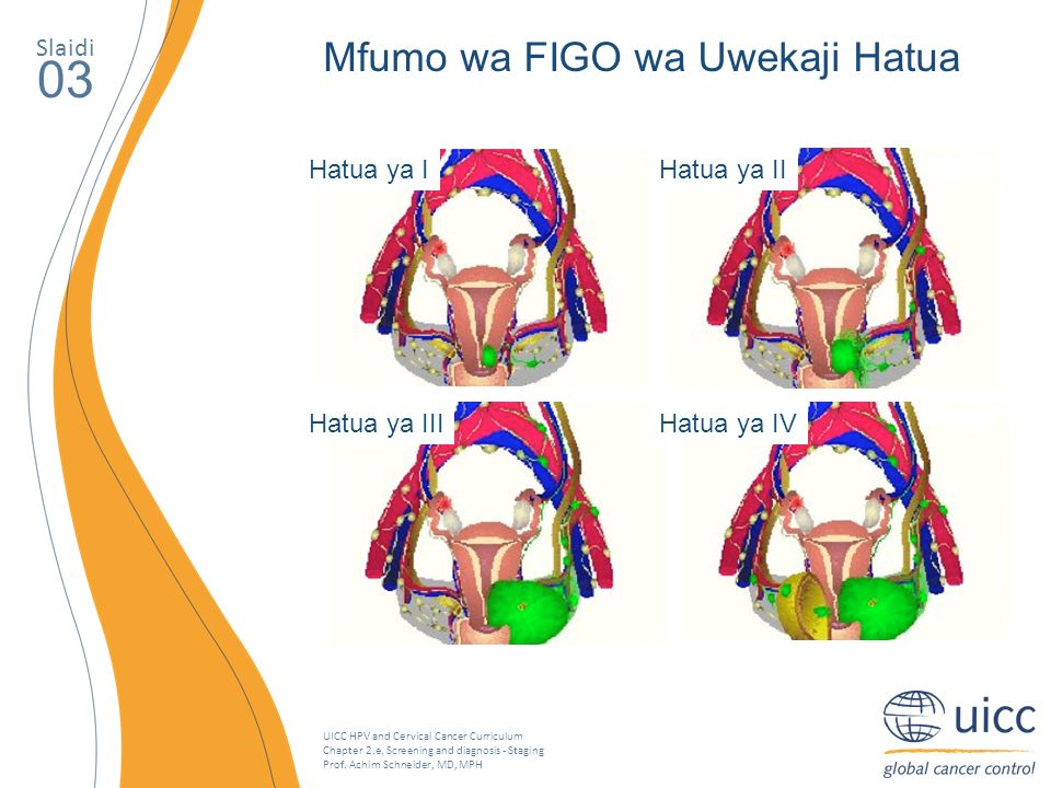UICC HPV and Cervical Cancer Curriculum Chapter 2.e. Screening and diagnosis - Staging Prof. Achim Schneider, MD, MPH Slaidi 03 Mfumo wa FIGO wa Uweka
