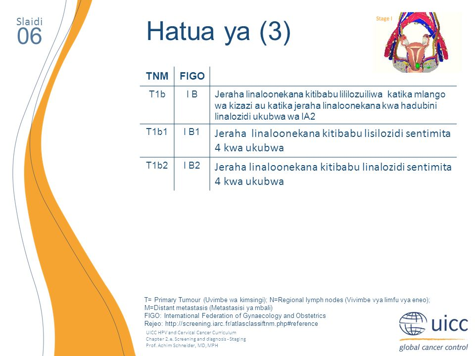 UICC HPV and Cervical Cancer Curriculum Chapter 2.e. Screening and diagnosis - Staging Prof. Achim Schneider, MD, MPH Slaidi 06 Hatua ya (3) TNMFIGO T