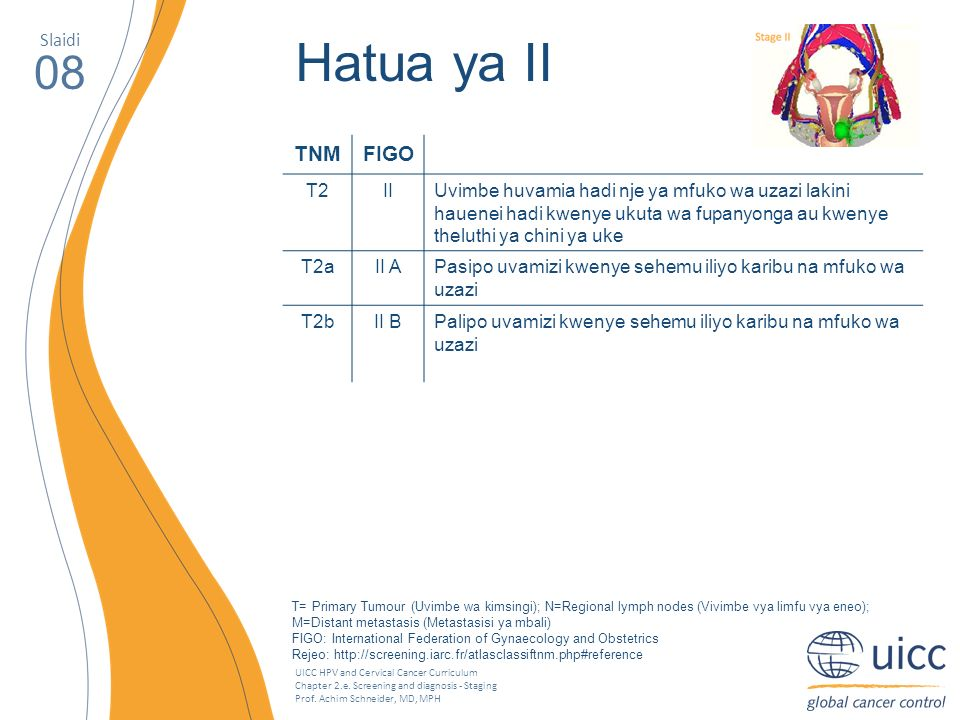 UICC HPV and Cervical Cancer Curriculum Chapter 2.e. Screening and diagnosis - Staging Prof. Achim Schneider, MD, MPH Slaidi 08 Hatua ya II TNMFIGO T2