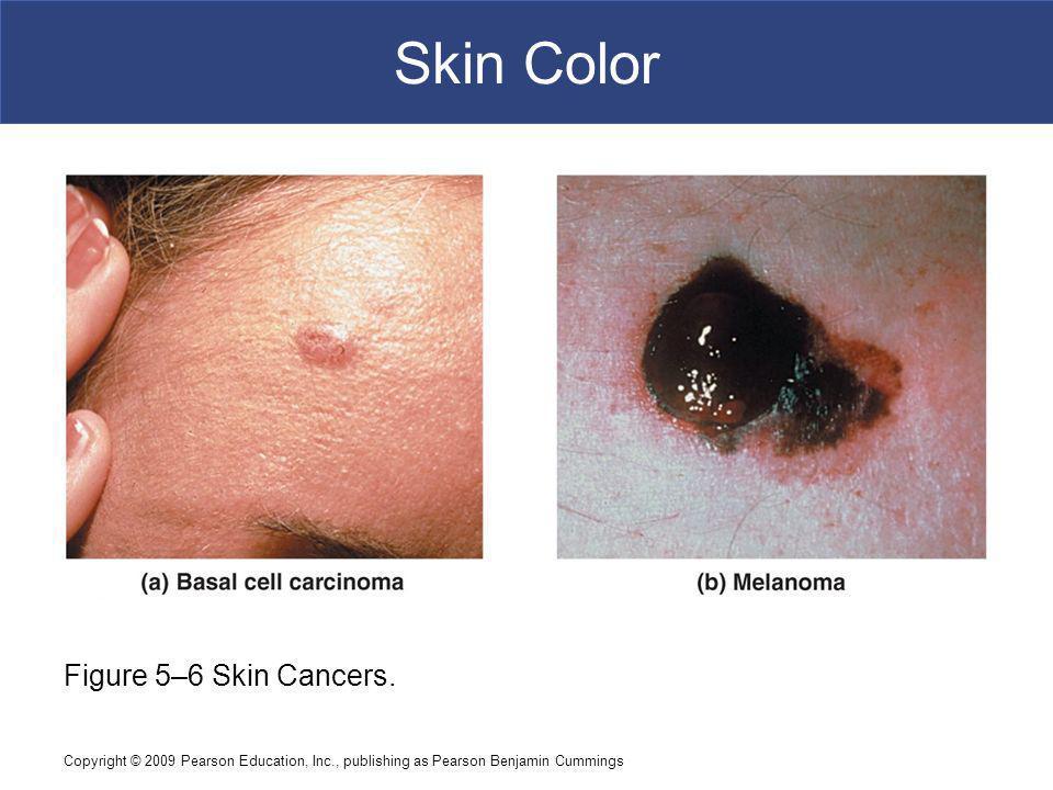 Copyright © 2009 Pearson Education, Inc., publishing as Pearson Benjamin Cummings Skin Color Figure 5–6 Skin Cancers.