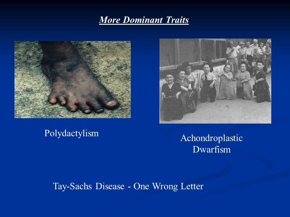 More Dominant Traits Polydactylism Achondroplastic Dwarfism Tay-Sachs Disease - One Wrong Letter