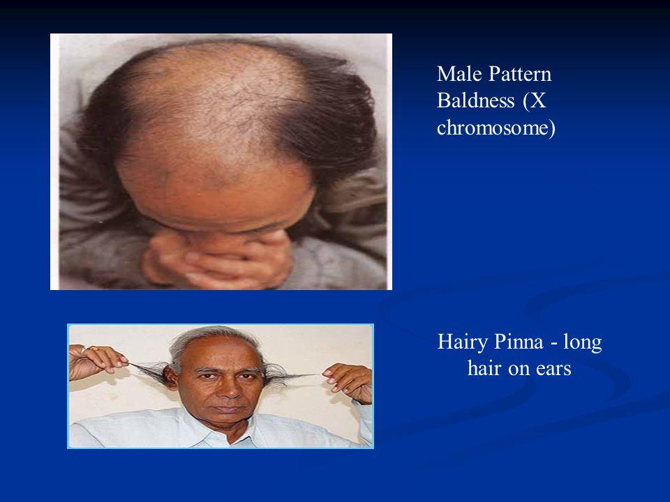 Male Pattern Baldness (X chromosome) Hairy Pinna - long hair on ears