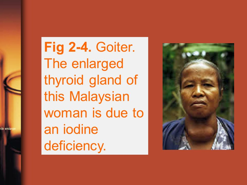 Fig 2-4.Goiter. The enlarged thyroid gland of this Malaysian woman is due to an iodine deficiency.