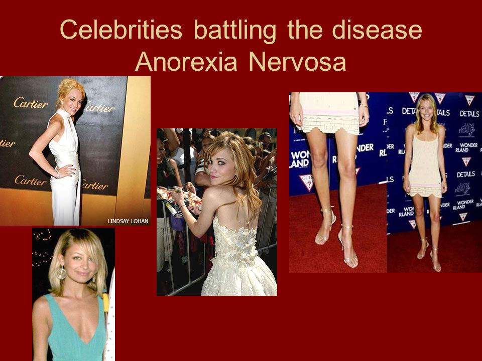 Celebrities battling the disease Anorexia Nervosa