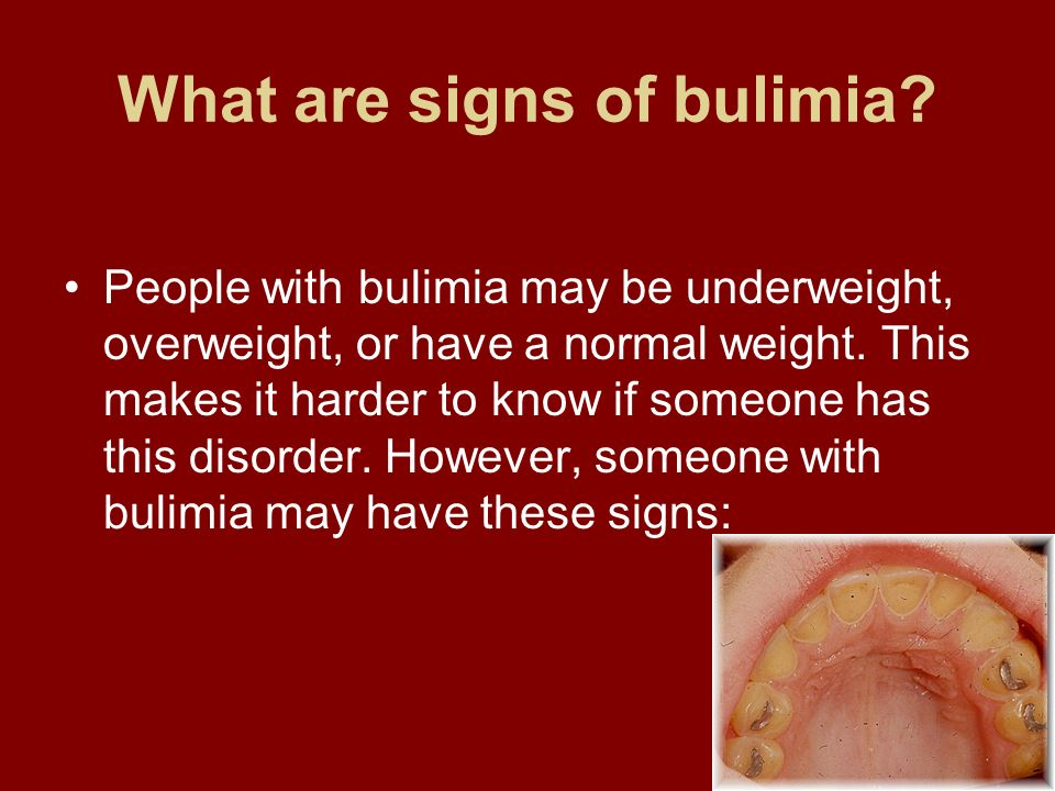 What are signs of bulimia? People with bulimia may be underweight, overweight, or have a normal weight. This makes it harder to know if someone has th