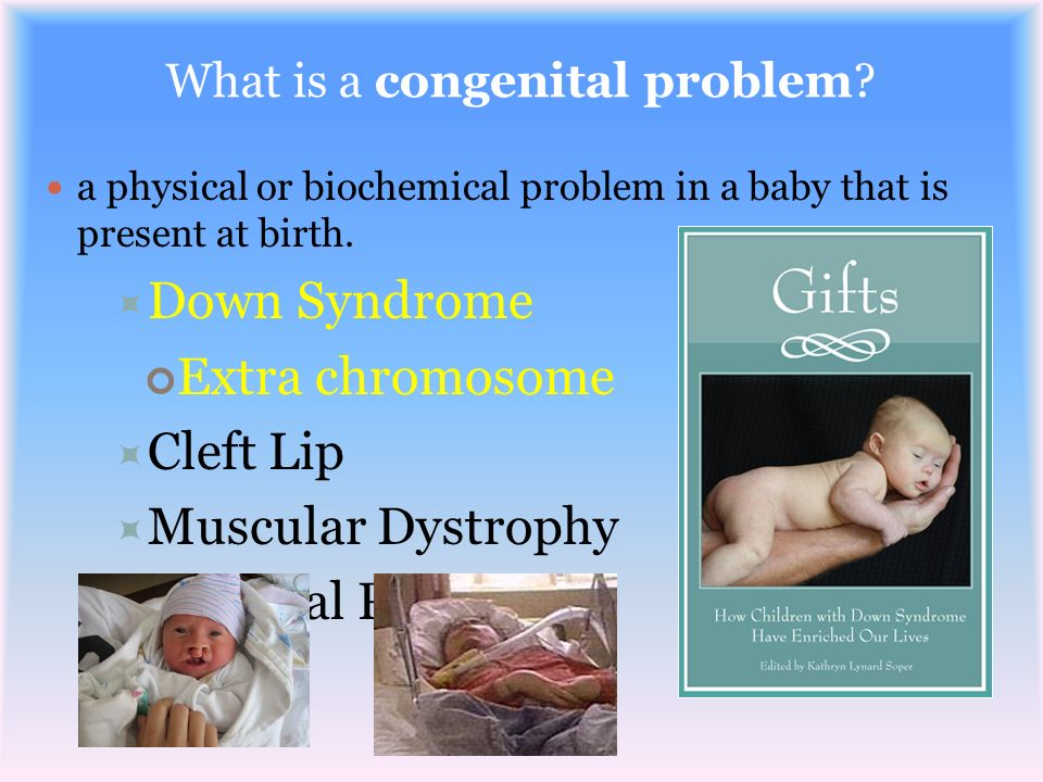 What is a congenital problem? a physical or biochemical problem in a baby that is present at birth. Down Syndrome Extra chromosome Cleft Lip Muscular